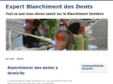 Expert Blanchiment des dents